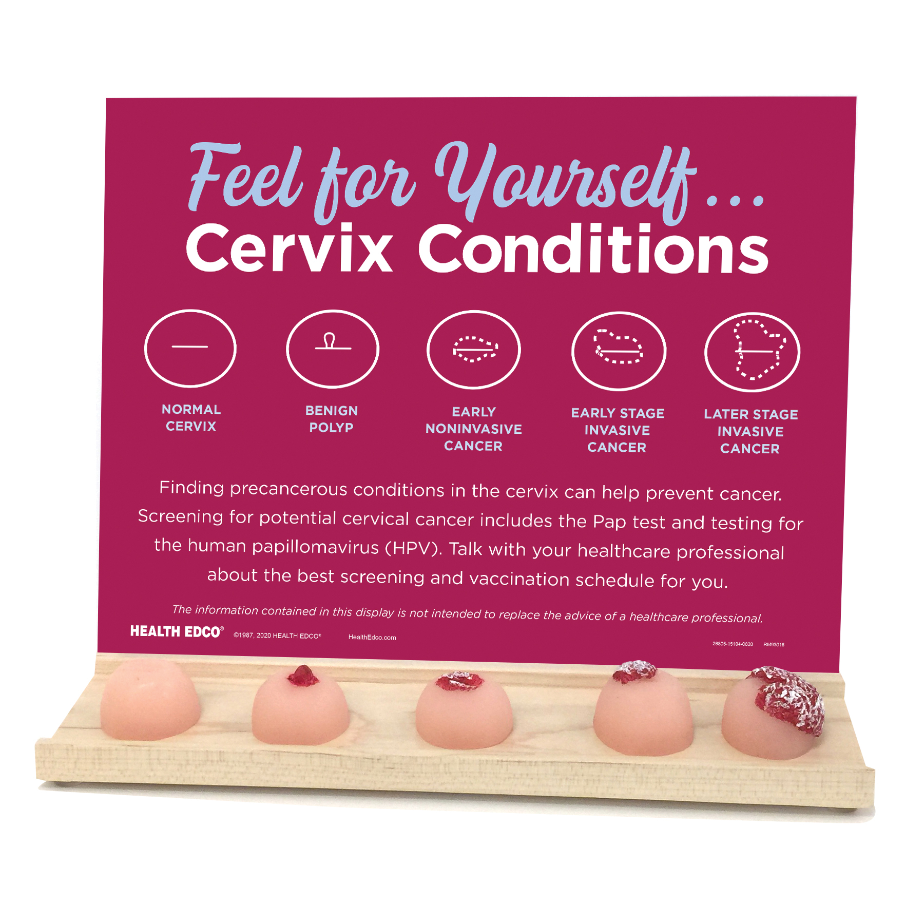 Cervix Conditions Display, 5 cervix conditions with attached tray of realistic feeling cervix condition models, promotes cervical screening PAP test and HPV testing, Health Edco, 26805
