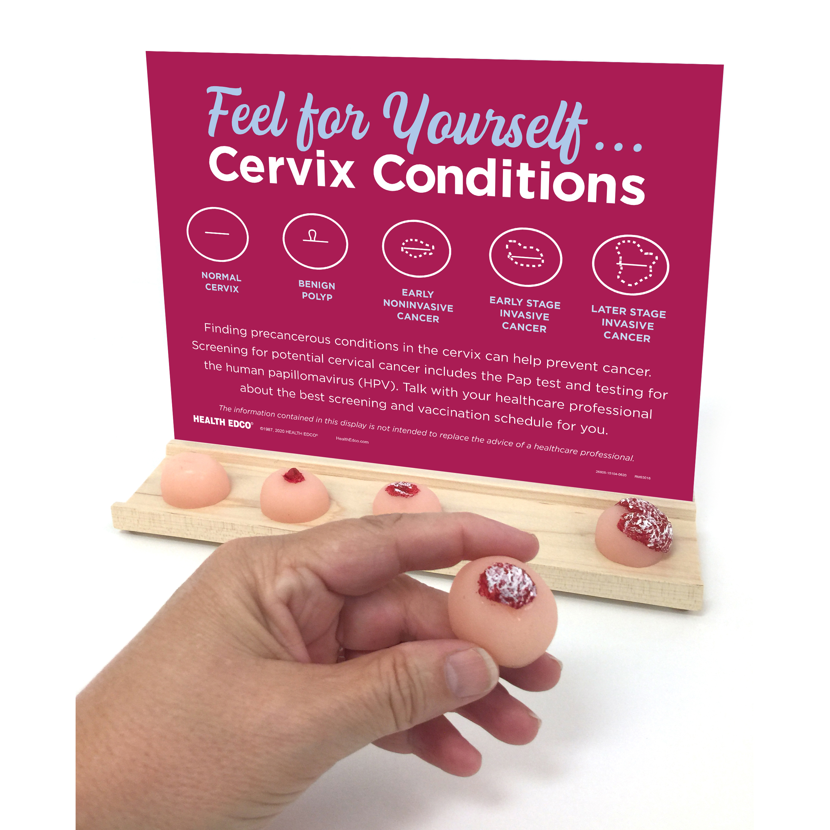 Cervix Conditions Display,5 cervix conditions with tray of realistic feeling cervix condition models, hand holding one model, cervical screening PAP test and HPV testing, Health Edco, 26805
