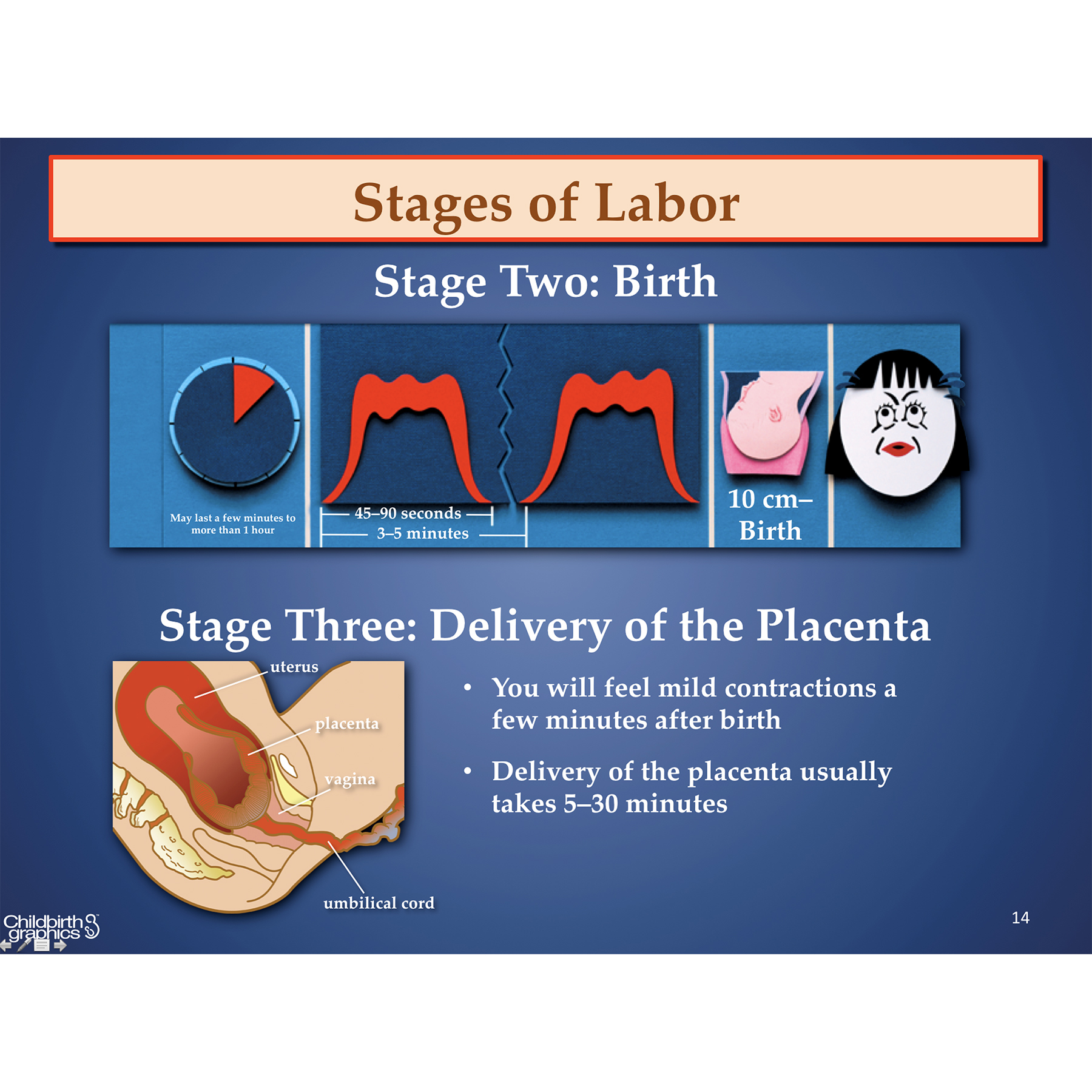 Labor and Birth PowerPoint,English and Spanish powerpoint presentations using paper sculpture illustrations to explain primary labor and birth processes, frame depicts stages 2 and 3 labor, Childbirt