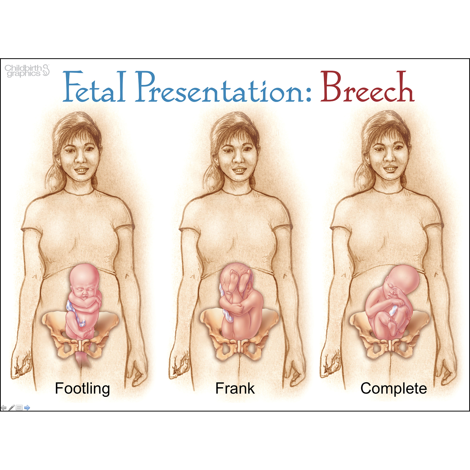 With Child PowerPoint, comprehensive 116 frame pre-pregnancy to 6 months postpartum presentation on disk with 46 page resource guide, fetal presentation-breech frame, Childbirth Graphics, 30855