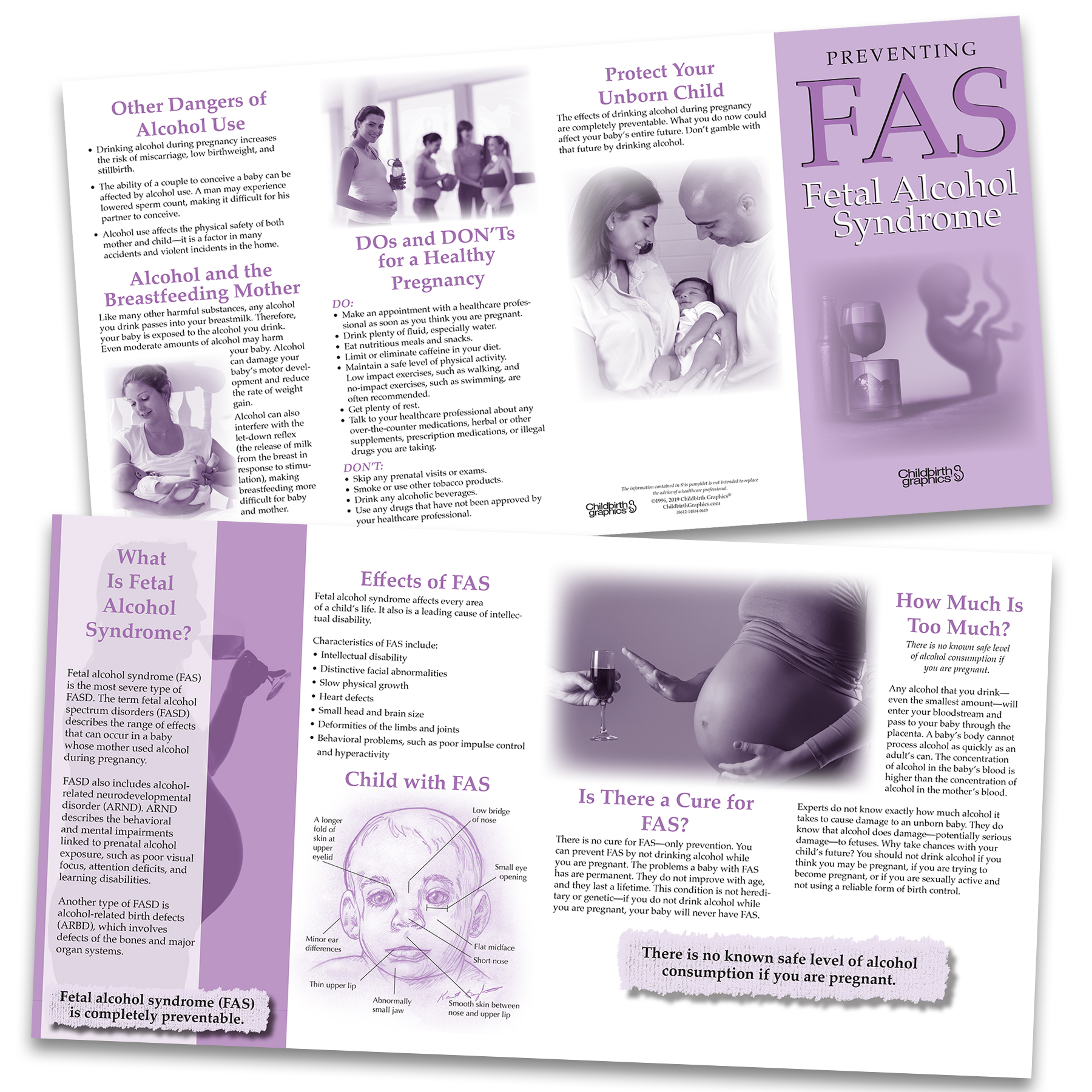 Fetal Alcohol Syndrome Fas Pamphlet Childbirth Graphics