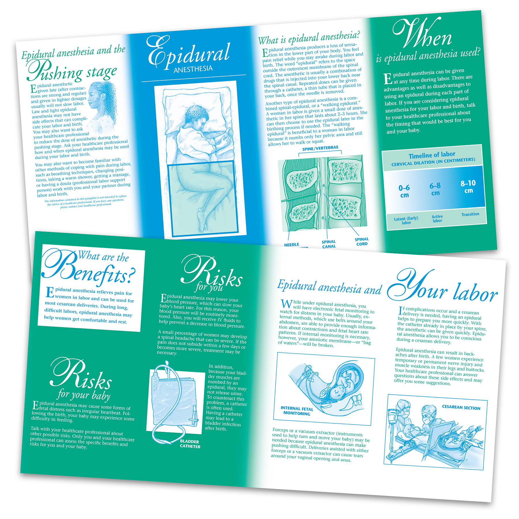 Epidural Anesthesia pamphlet, two-color illustrated pamphlet inside and outside panels shown, Childbirth Graphics, 38623