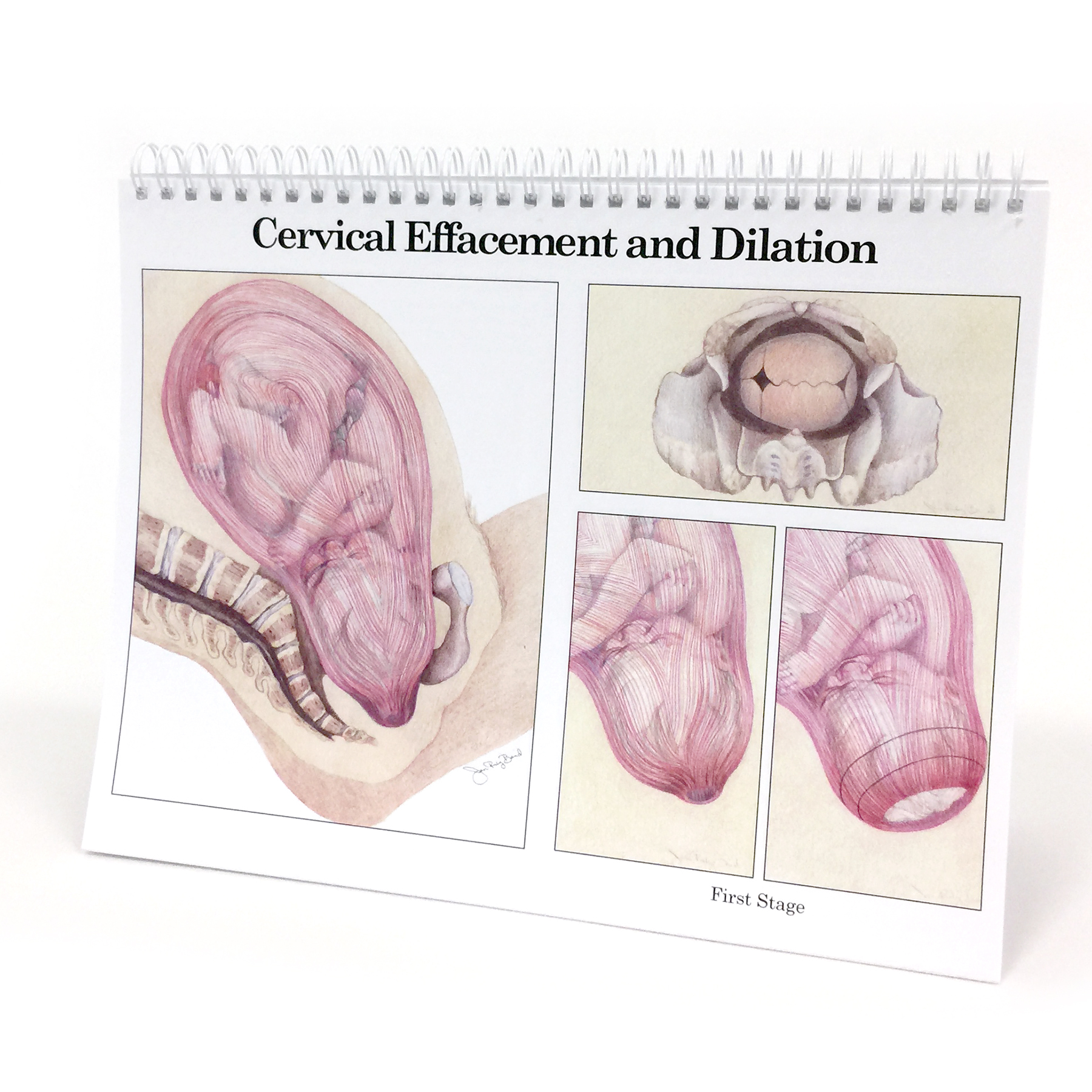 Childbearing illustrated desk size spiral bound flip chart cervical effacement and dilation, Childbirth Graphics, 50702