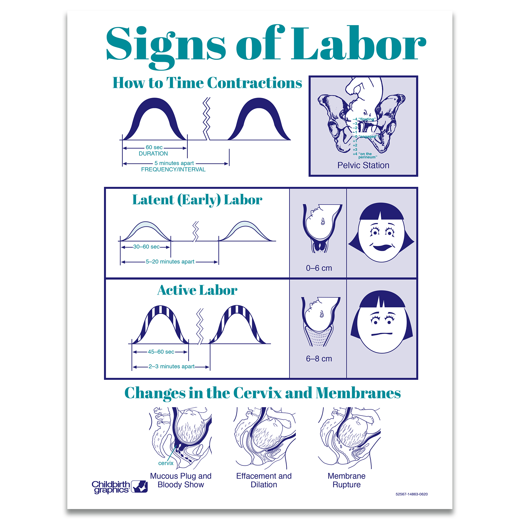 Signs of Labor 2-color illustrated tear pad, timing contractions pain level what is happening, Childbirth Graphics 52567