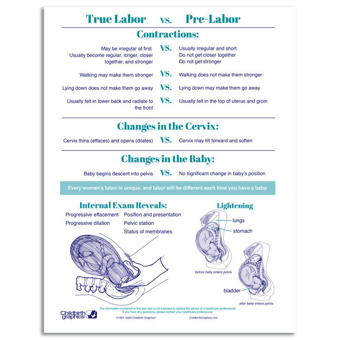 Signs of Labor Tear Pad by Childbirth Graphics for childbirth education and teaching about labor and cervical changes, 52567