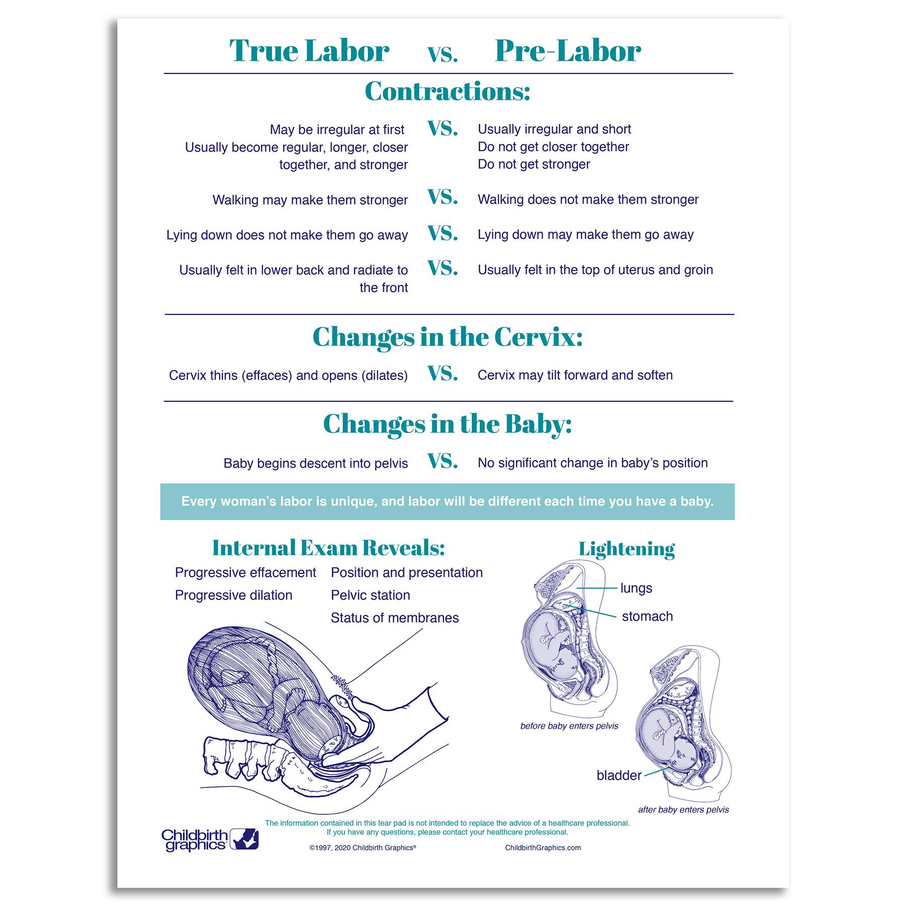 Signs of Labor 2-color illustrated tear pad back, true vs prelabor symptoms, Childbirth Graphics 52567