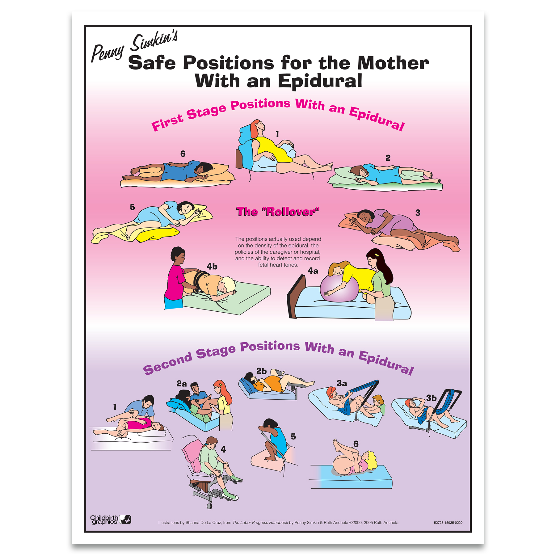 Penny Simkin's Safe Labor Positions with an Epidural full-color illustrated tear pad, 2 stages Childbirth Graphics 52728