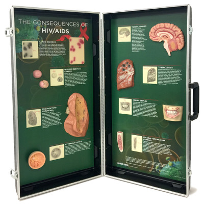 HIV/AIDS Consequences 3-D Display for health education by Health Edco with models of AIDS opportunistic infections, 78882