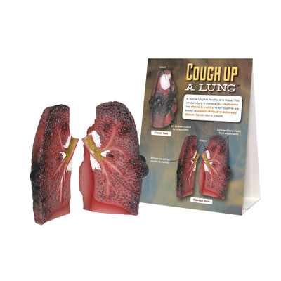 Cough Up a Lung Model for health education from Health Edco showing a smoker's lung with lung cancer and COPD, 78958