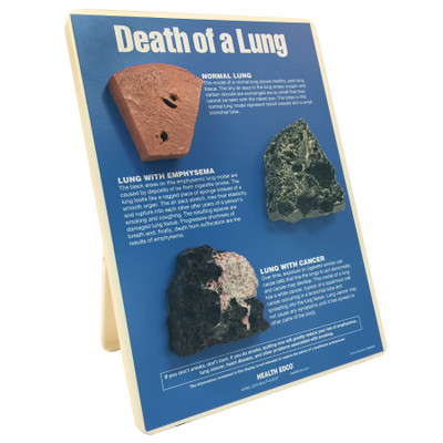 Death of a Lung educational easel display from Health Edco with models of a normal, emphysematous, and cancerous lung, 79148