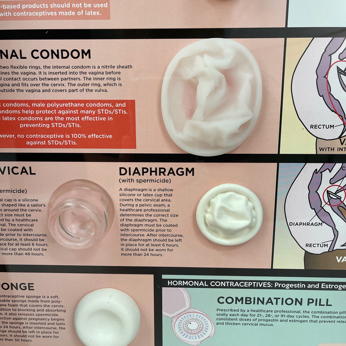 A Guide to Contraceptives Kit, Health Edco health and sex education 3-D display, detail of barrier method models, 79256