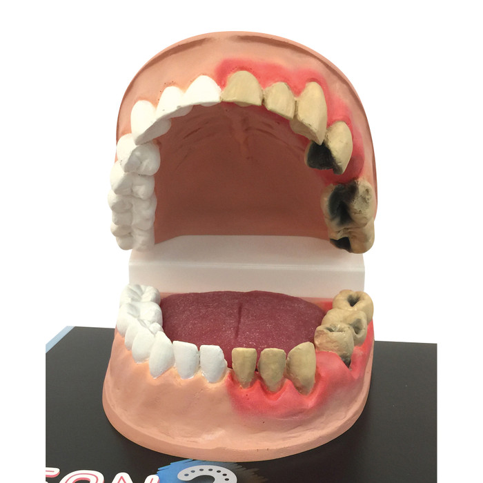 Close up of Dental Health Model from Clean Mouth Dirty Mouth Dental Health Education Display, Health Edco, 79650