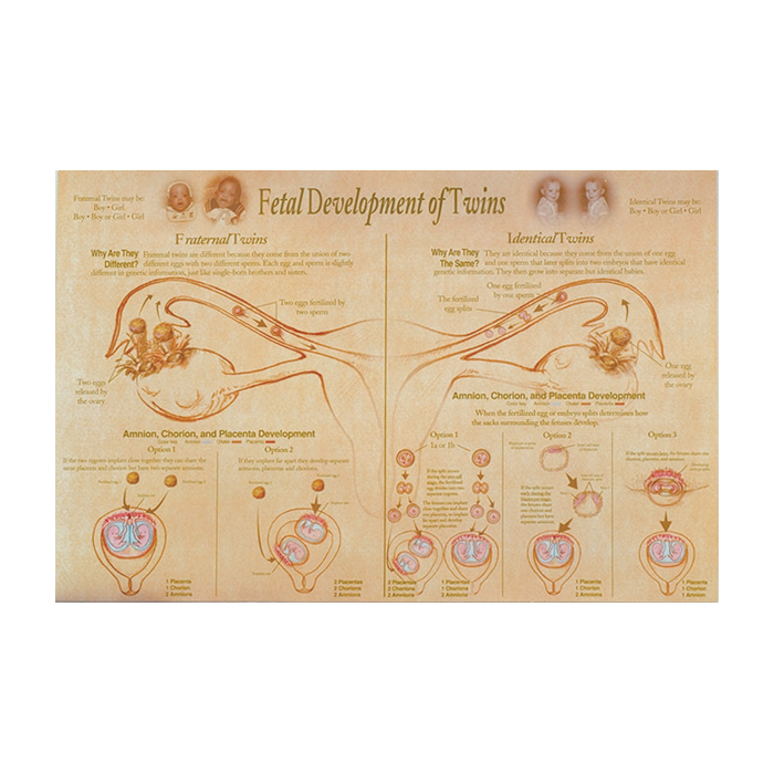 Post Twins Chart, Fetal Development of Twins illustrated fraternal & identical development, Childbifrth Graphics, 89643