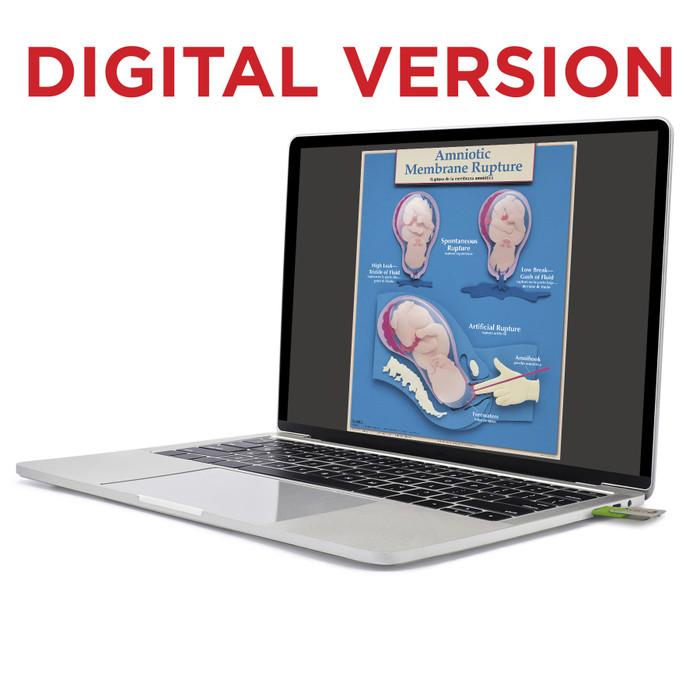 Essential Labor and Birth Virtual Chart Set, Childbirth Graphics childbirth teaching charts shown on laptop screen, 90630V