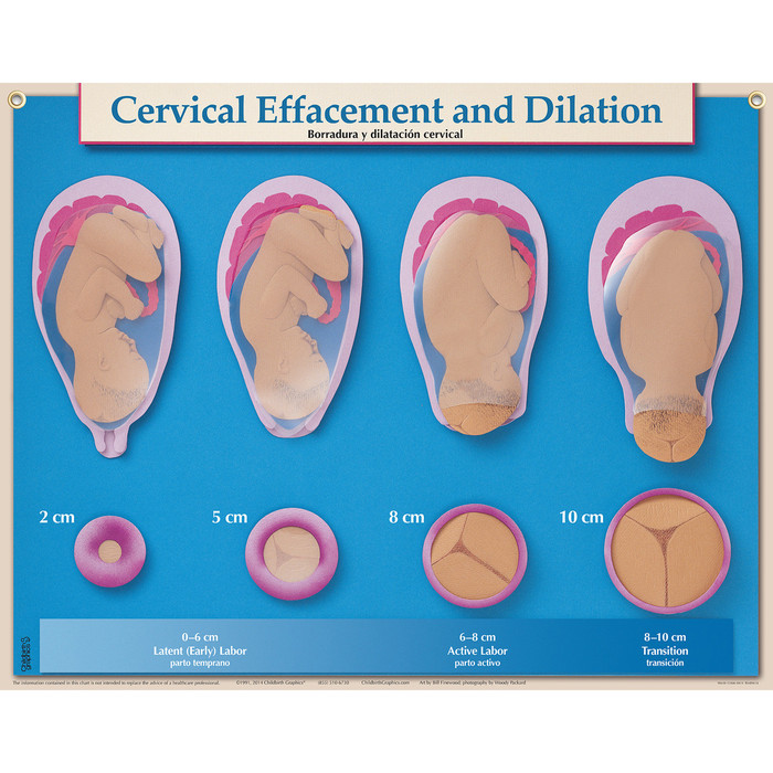 Cervical Effacement & Dilation in Six Essential Labor & Birth Charts, Virtual, digital Childbirth Graphics charts, 90630V