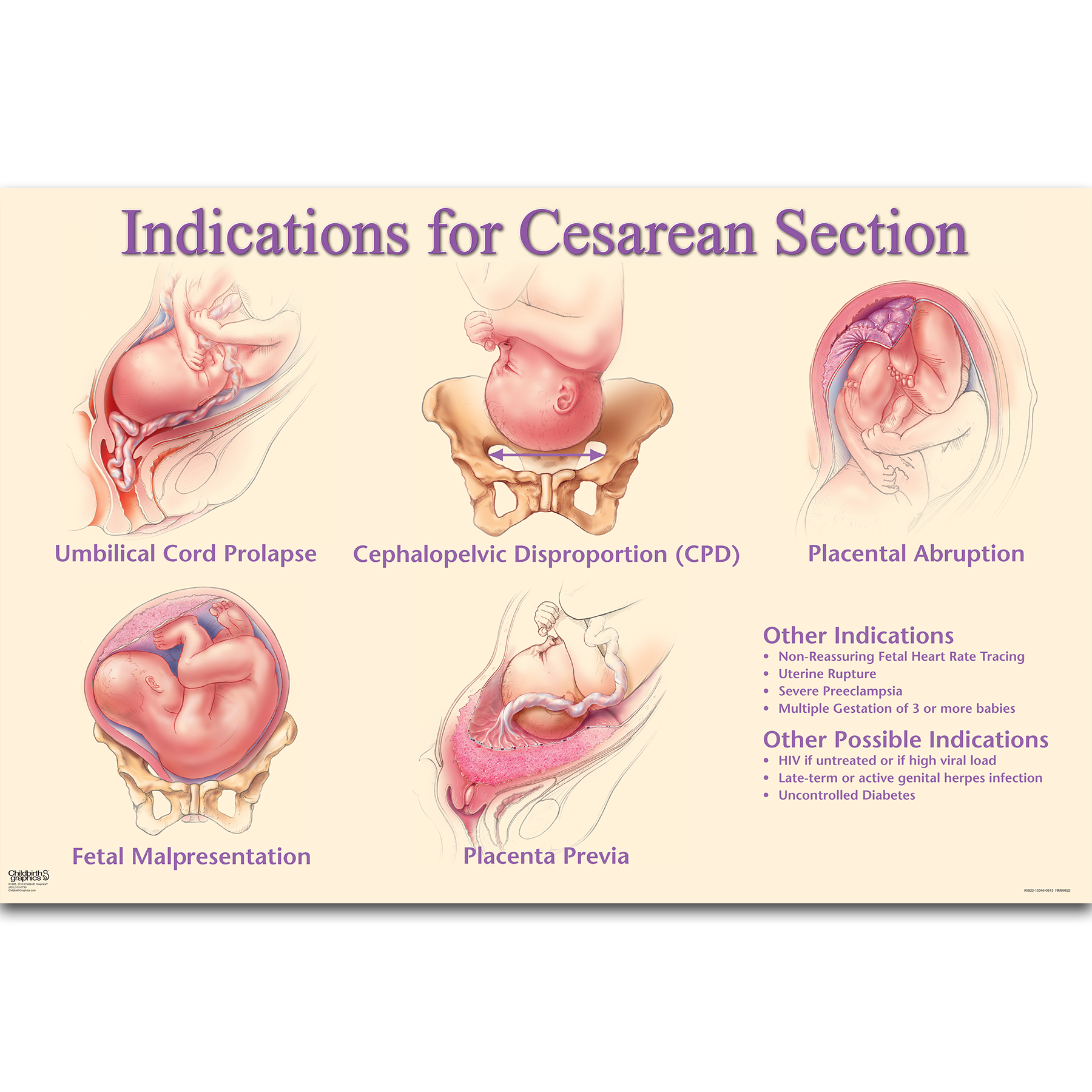 Indications For Cesarean Section Chart | Childbirth Graphics