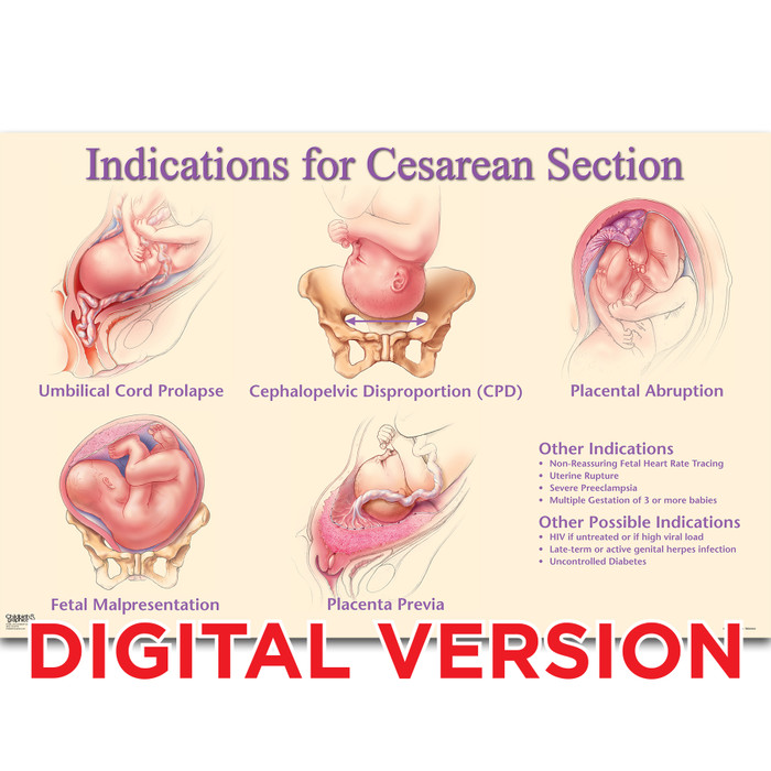 Indications for Cesarean Section Chart, Virtual, digital version Childbirth Graphics childbirth education chart, 90822V